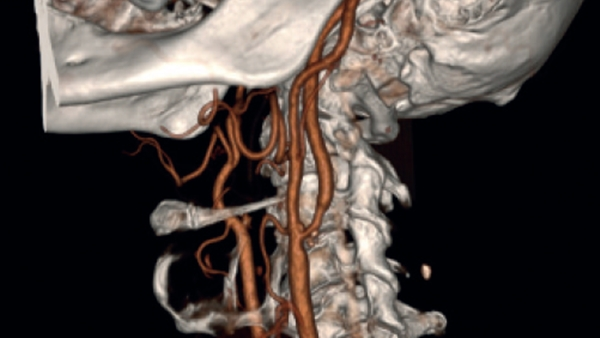 Sectra: Better Access to 3D Radiology Images